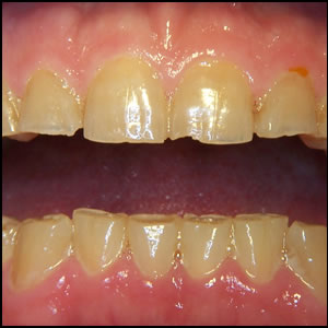 http://www.opdentist.com/Dental_Reference/bruxism.jpg