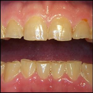 http://www.opdentist.com/Dental_Reference/bruxism.jpg