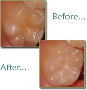 Before and after childrens preventive dental sealants.