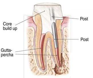 Molar endodontic root canal with post and core